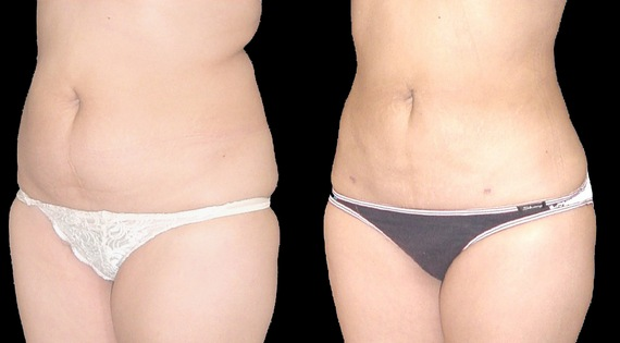 Before and after tummy liposuction