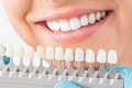 Benefits of Cosmetic Dentures