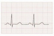 ECG and Heart Problems