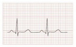ECG of heart rate
