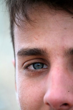 Young men, too, can suffer from glaucoma